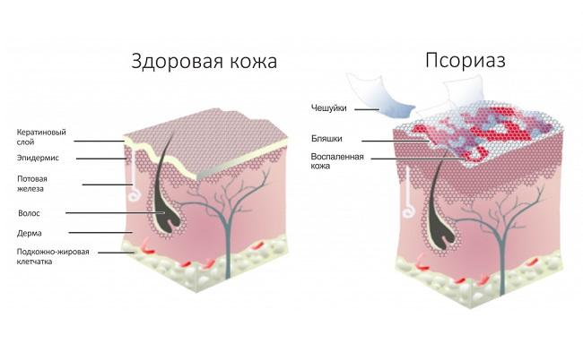 все о кожных болезнях на netdermatit.ru